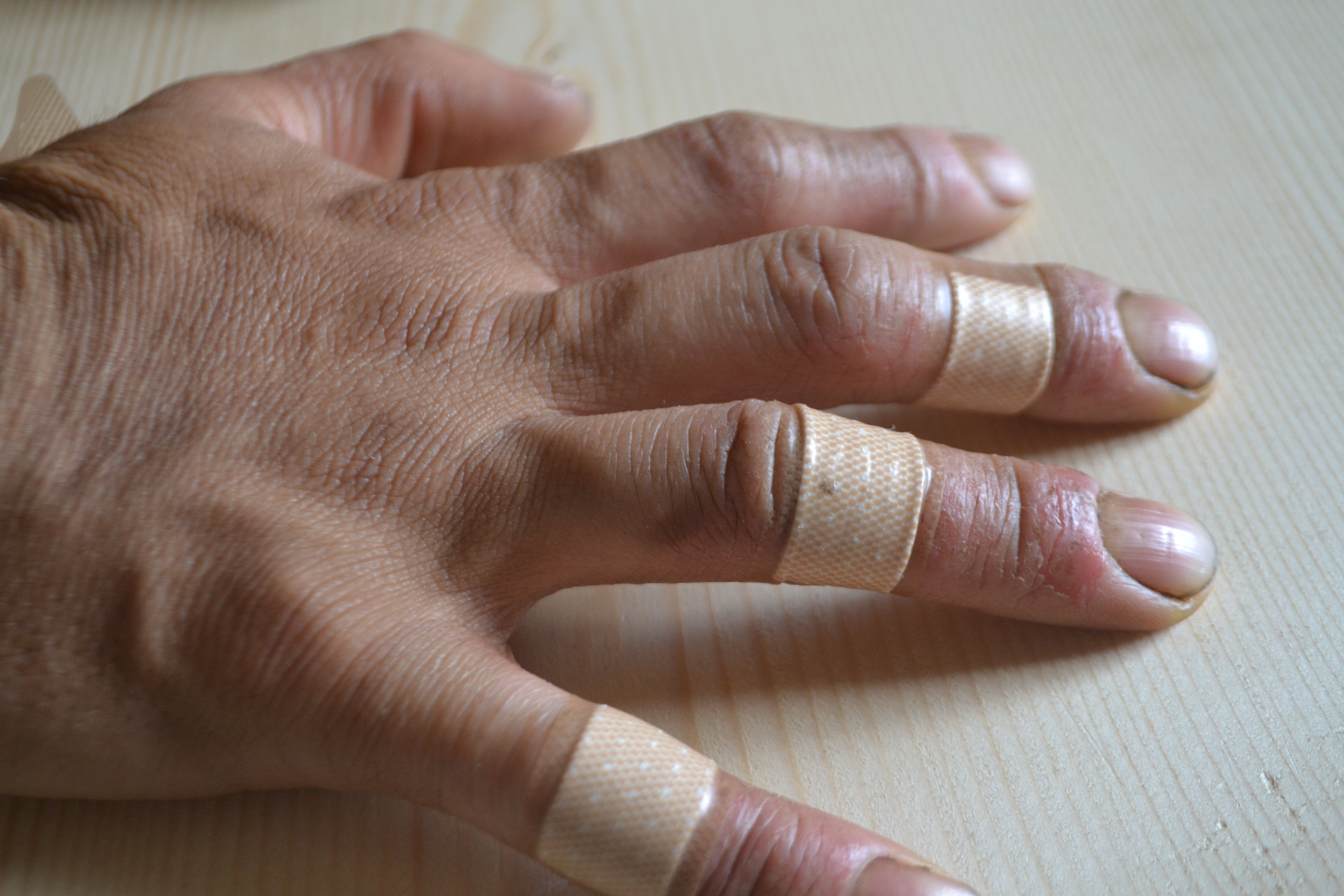 肌荒れは健康のパラメーター!